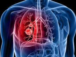 La cannabis aiuta nella cura del cancro ai polmoni