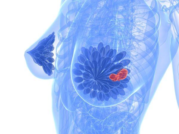 Illustrazione del cancro al seno