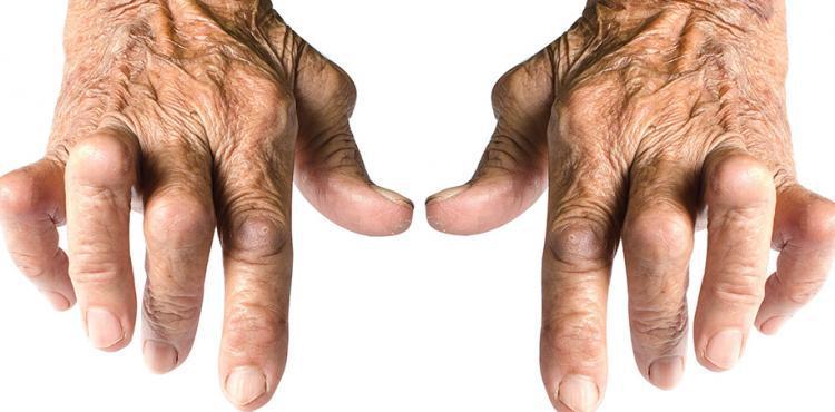 Contrazione da artrite
