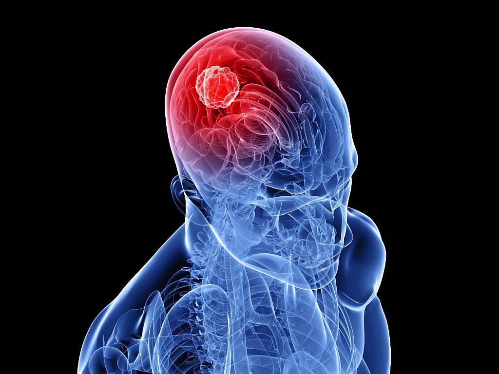 Tumore al cervello
