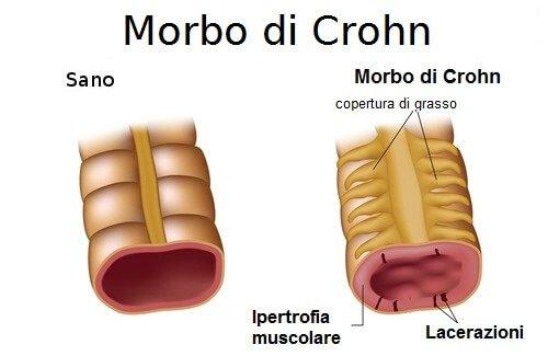 Morbo di Crohn caso sano e caso patologico