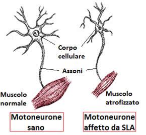 Differenze tra motoneurone sano e motoneurone affetto da SLA