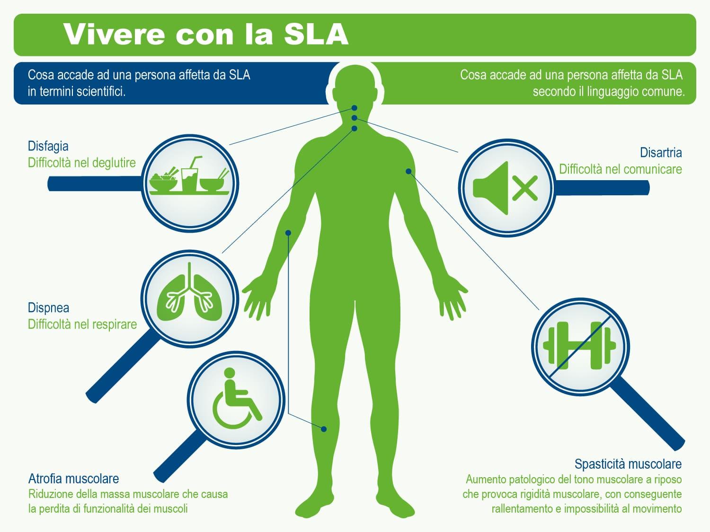 Descrizione della SLA
